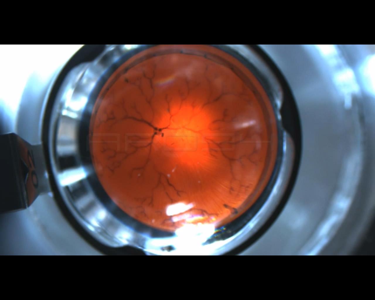 Da Zurigo un nanorobot come chirurgo